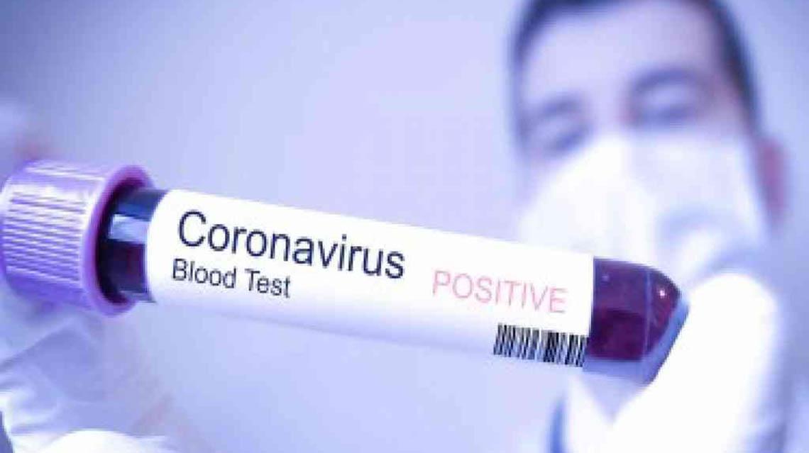 COVID-19: Bragado suma 18 nuevos casos y ya son más de 100 los pacientes activos